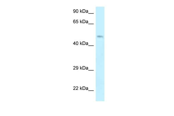 Dematin Antibody in Western Blot (WB)