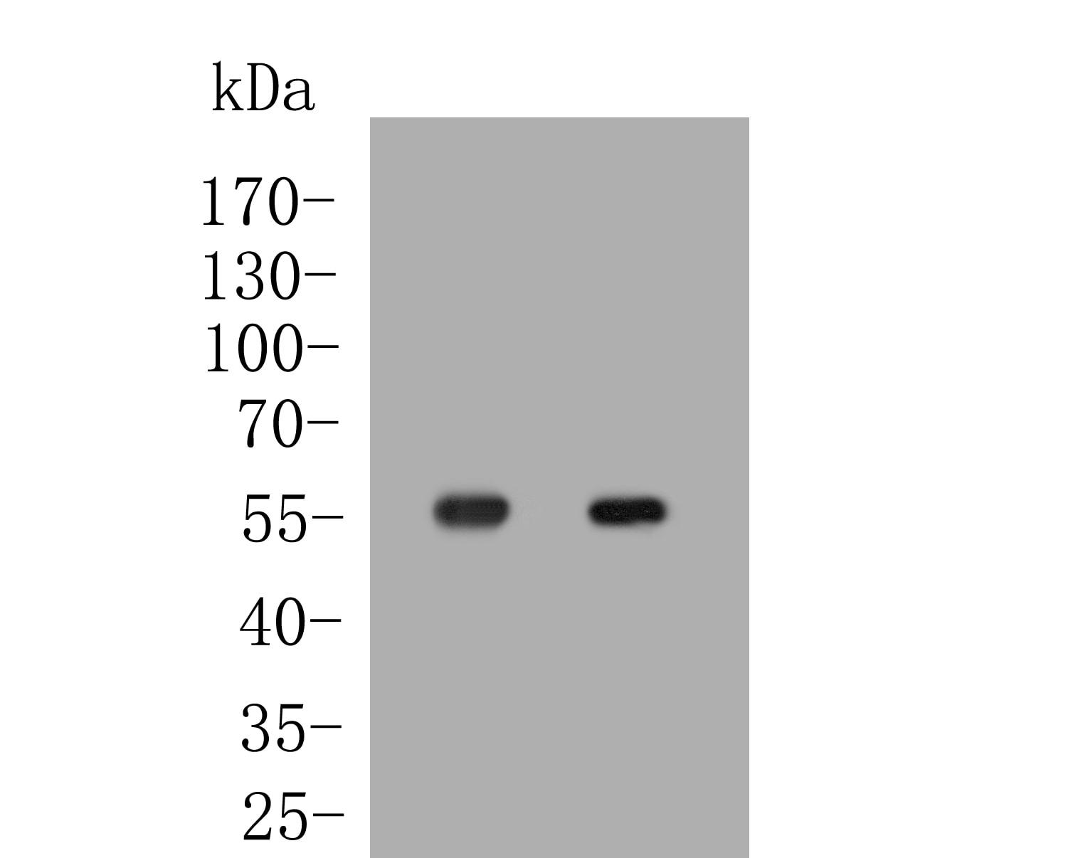 OXPAT Antibody in Western Blot (WB)