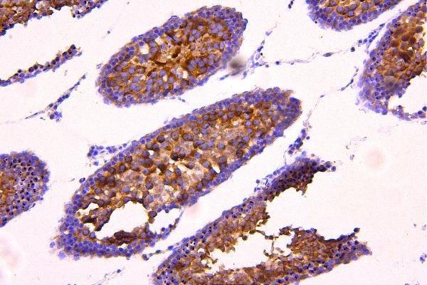 ACACB Antibody in Immunohistochemistry (Paraffin) (IHC (P))