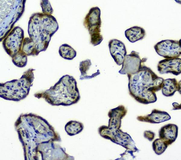 SIRT4 Antibody in Immunohistochemistry (Paraffin) (IHC (P))