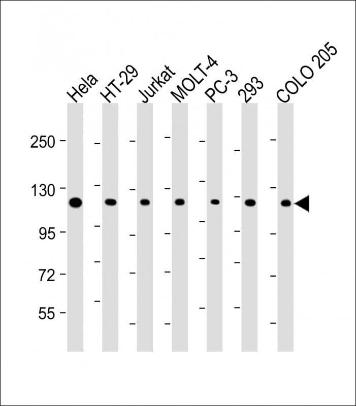 TERT Antibody in Western Blot (WB)