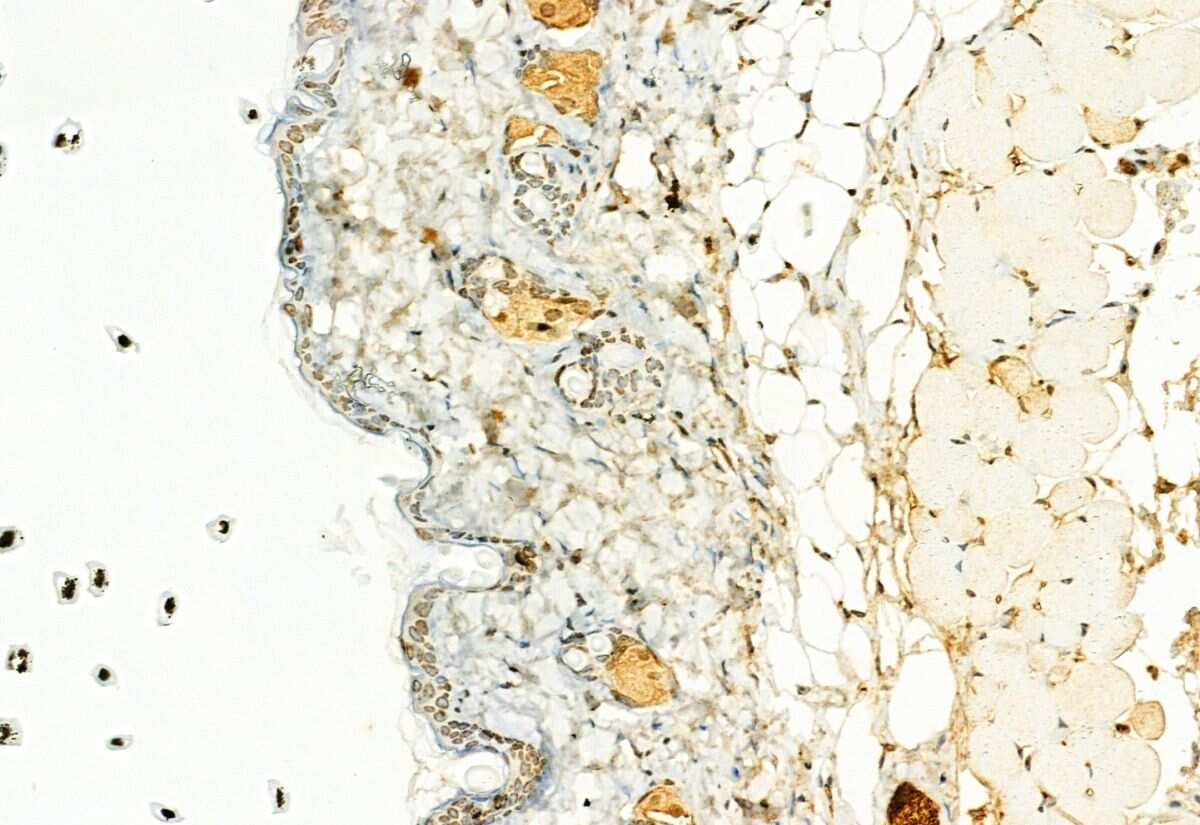 H3K27me3 Antibody in Immunohistochemistry (Paraffin) (IHC (P))