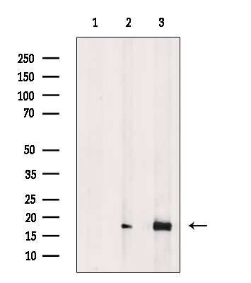 Phospho-4EBP1 (Thr37, Thr46) Antibody in Western Blot (WB)