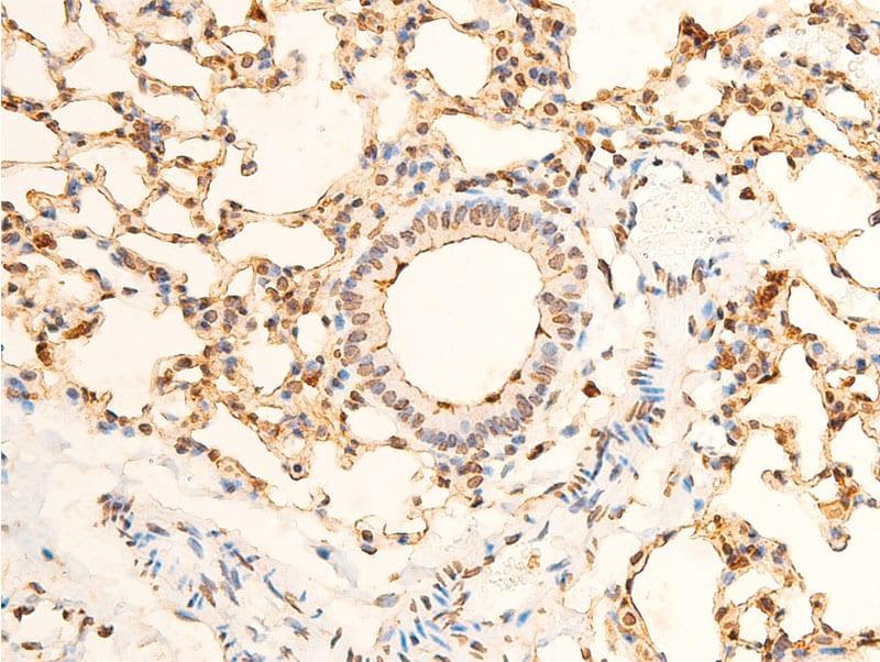 Phospho-EIF2S1 (Ser51, Ser52) Antibody in Immunohistochemistry (Paraffin) (IHC (P))