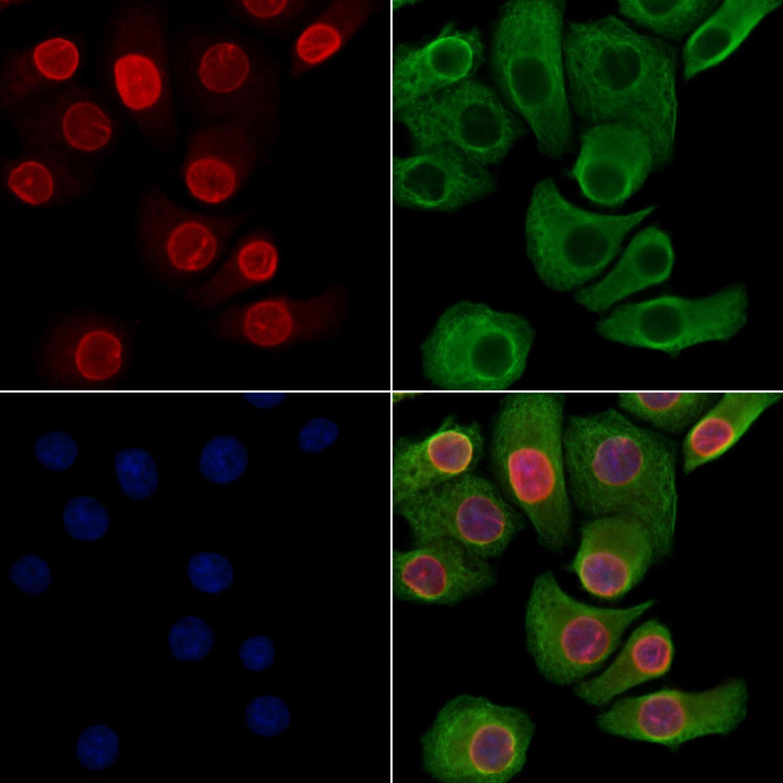 Phospho-Lamin A/C (Ser390) Antibody in Immunocytochemistry (ICC)