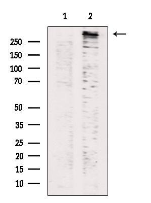 Phospho-LRRK2 (Ser935) Antibody in Western Blot (WB)