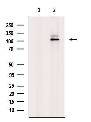Phospho-PYGL (Ser17) Antibody in Western Blot (WB)