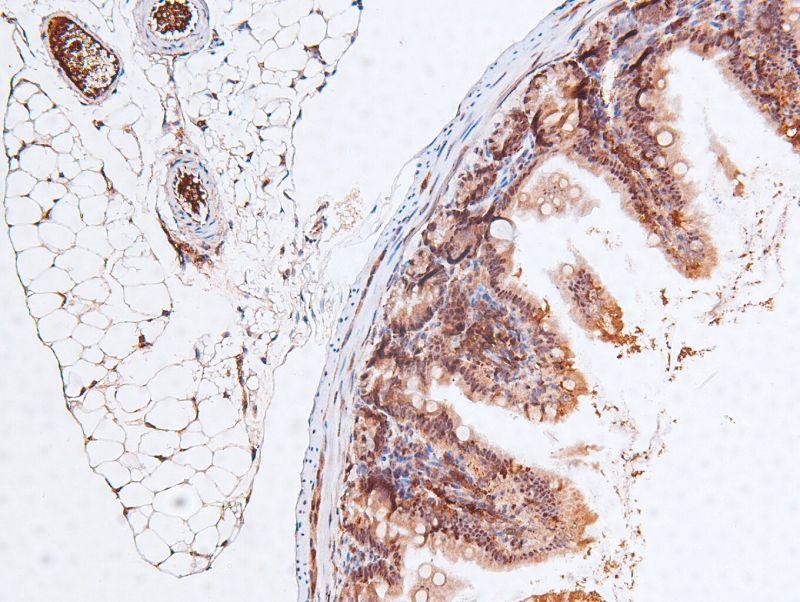 Phospho-RB1 (Ser788) Antibody in Immunohistochemistry (Paraffin) (IHC (P))
