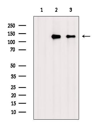 Phospho-ZO-2 (Tyr1118) Antibody in Western Blot (WB)