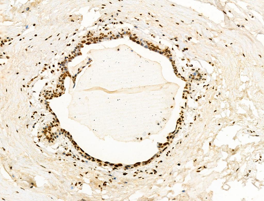 H2BK20ac Antibody in Immunohistochemistry (Paraffin) (IHC (P))