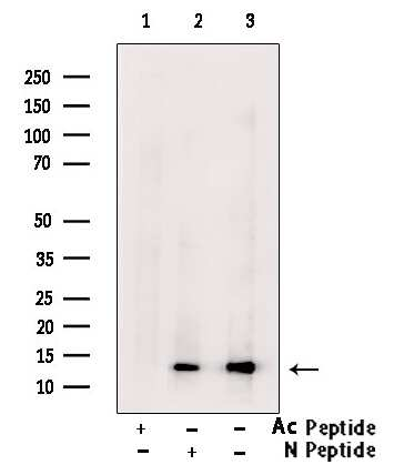 H2BK20ac Antibody in Western Blot (WB)