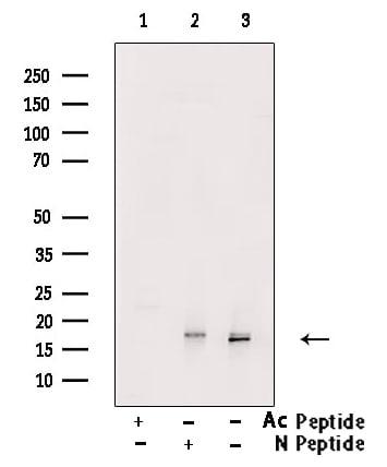 H3ac pan-acetyl (K9, K14, K18, K23, K27) Antibody in Western Blot (WB)