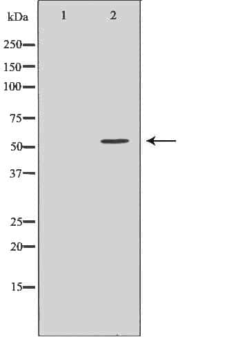 ACVR2A Antibody in Western Blot (WB)