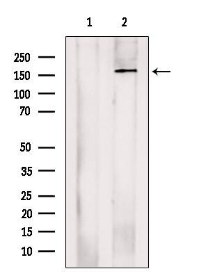 ADCY10 Antibody in Western Blot (WB)