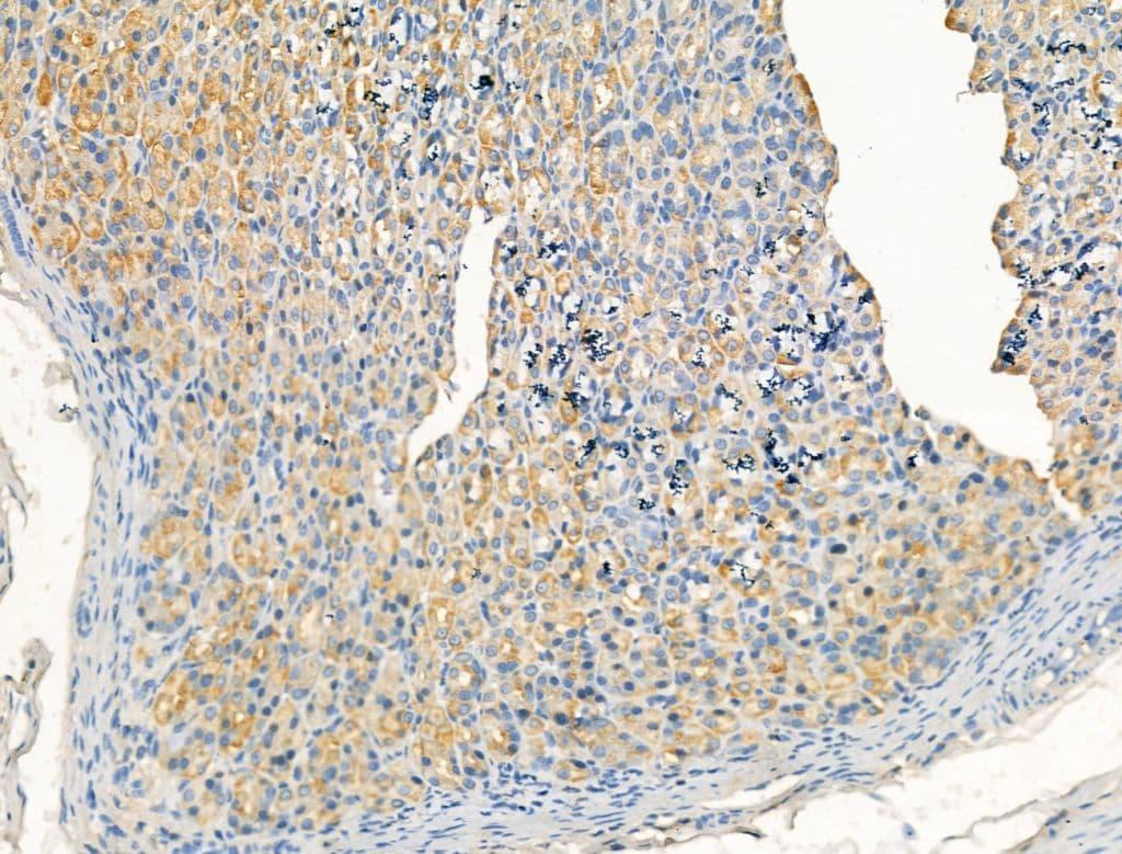 ARF1/ARF3/ARF5/ARF6 Antibody in Immunohistochemistry (Paraffin) (IHC (P))