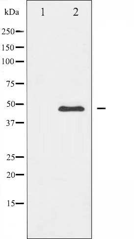 CaMKII alpha/delta Antibody in Western Blot (WB)