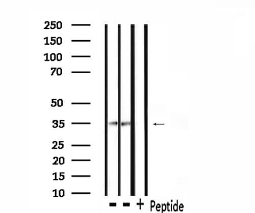 CK1 alpha Antibody in Western Blot (WB)