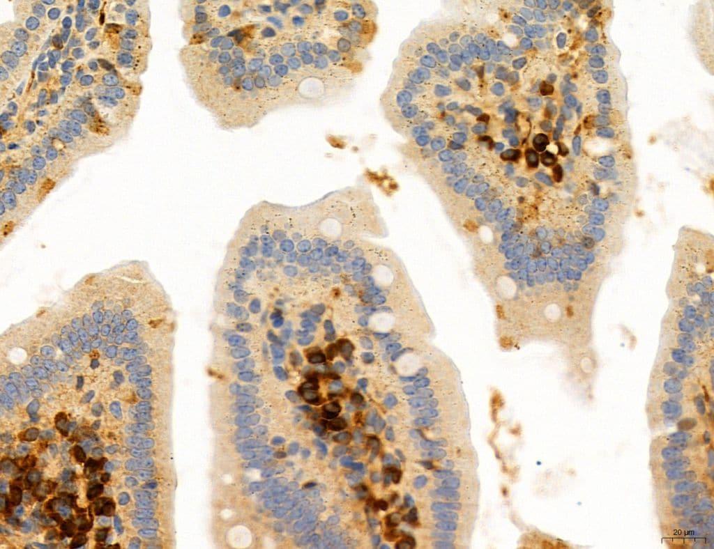 CD44 Antibody in Immunohistochemistry (Paraffin) (IHC (P))