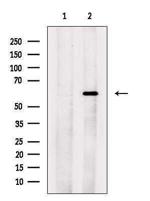 CDK5RAP3 Antibody in Western Blot (WB)