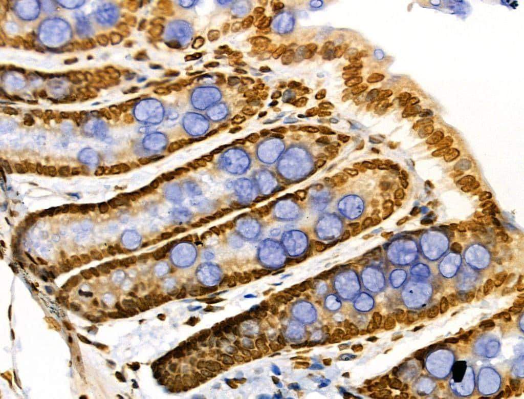 CDK8 Antibody in Immunohistochemistry (Paraffin) (IHC (P))