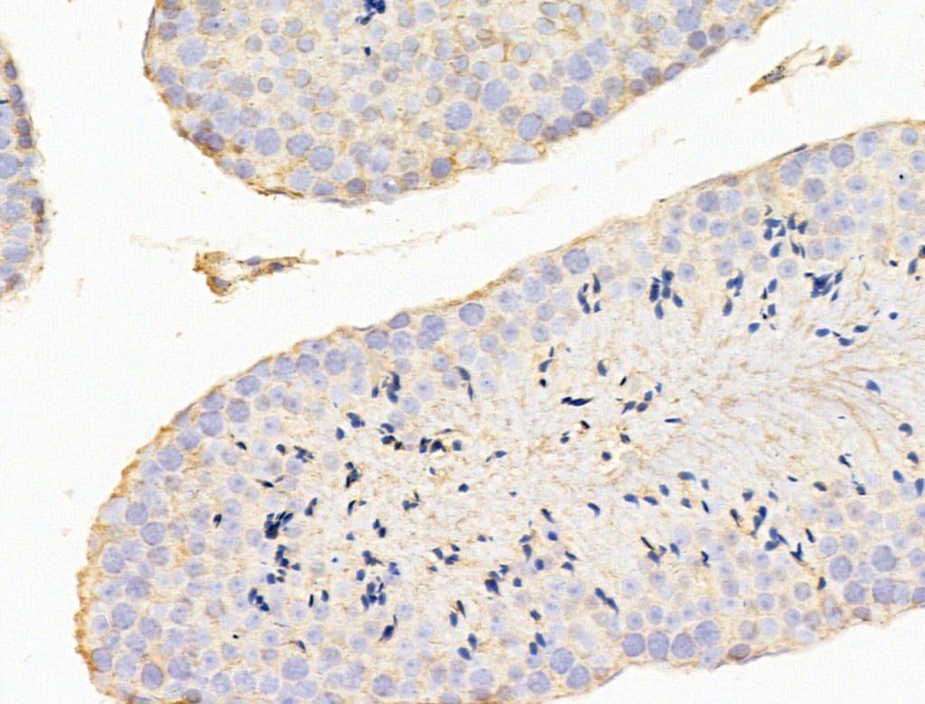 CERT Antibody in Immunohistochemistry (Paraffin) (IHC (P))