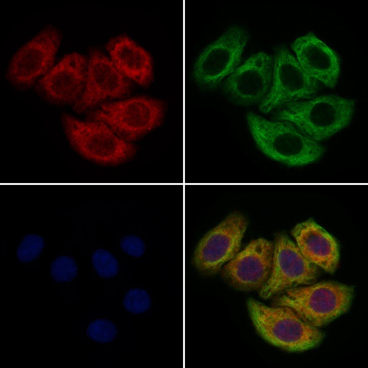 CUBN Antibody in Immunocytochemistry (ICC/IF)
