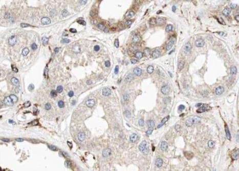 CUBN Antibody in Immunohistochemistry (Paraffin) (IHC (P))