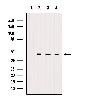 eIF4A3 Antibody in Western Blot (WB)