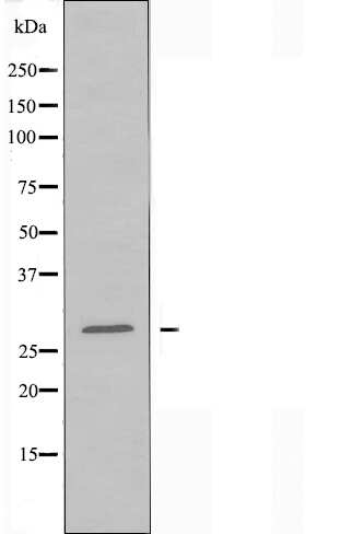 ELOVL5 Antibody in Western Blot (WB)