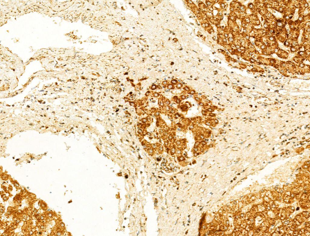GZMB/GZMH Antibody in Immunohistochemistry (Paraffin) (IHC (P))