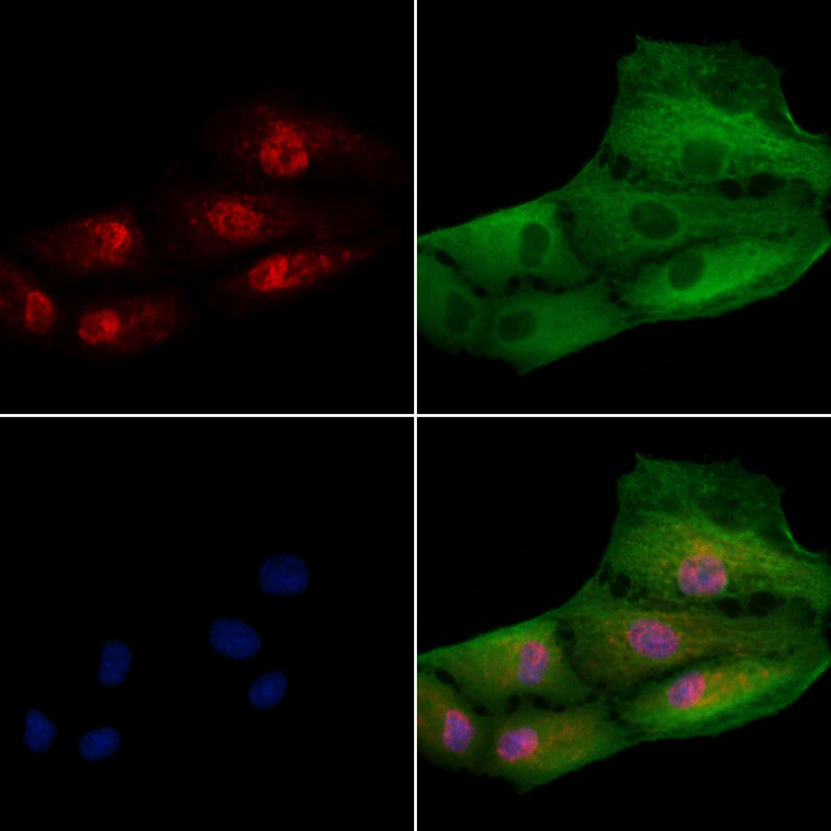 iASPP Antibody in Immunocytochemistry (ICC)