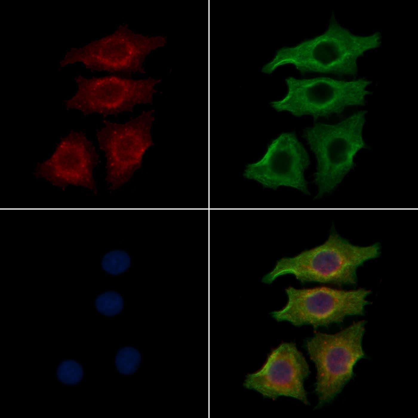 INSR Antibody in Immunocytochemistry (ICC/IF)