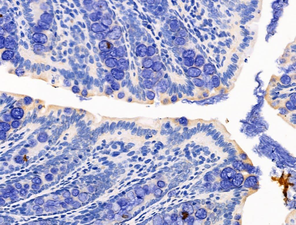 KGF Antibody in Immunohistochemistry (Paraffin) (IHC (P))