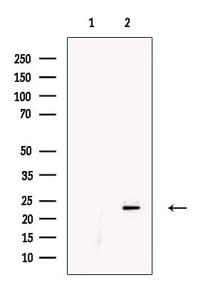 KGF Antibody in Western Blot (WB)