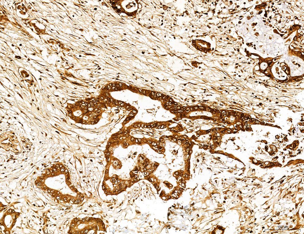 Lass2 Antibody in Immunohistochemistry (Paraffin) (IHC (P))
