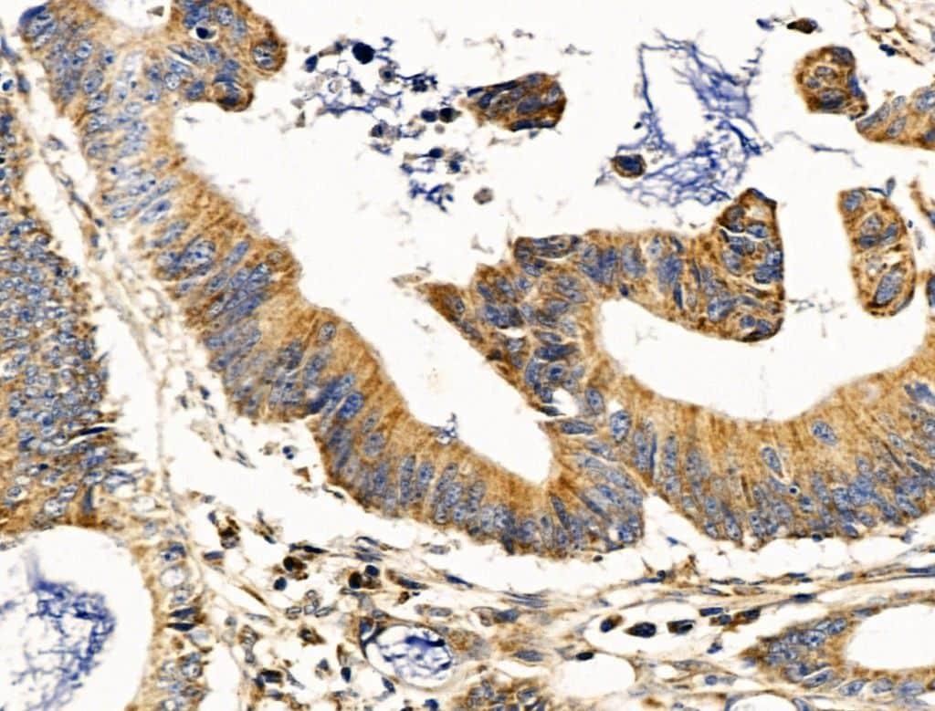 MUT Antibody in Immunohistochemistry (Paraffin) (IHC (P))