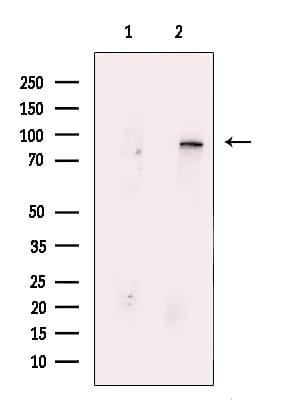 MUT Antibody in Western Blot (WB)