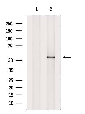 MST1 (STK4) Antibody in Western Blot (WB)