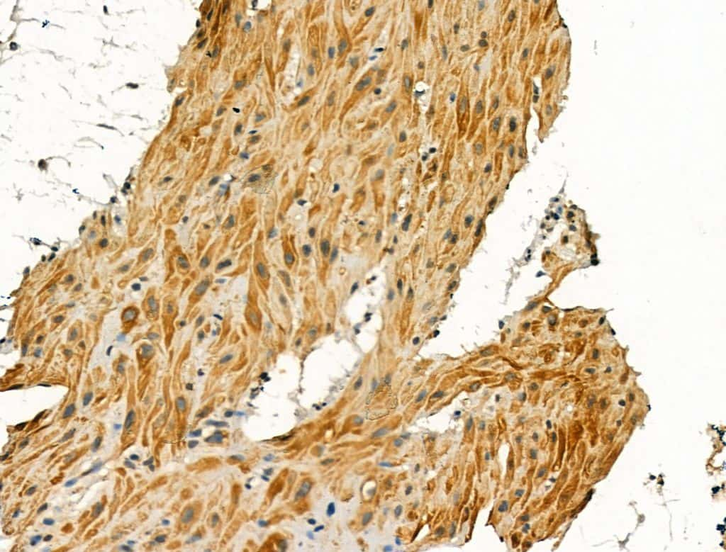 Pericentrin Antibody in Immunohistochemistry (Paraffin) (IHC (P))