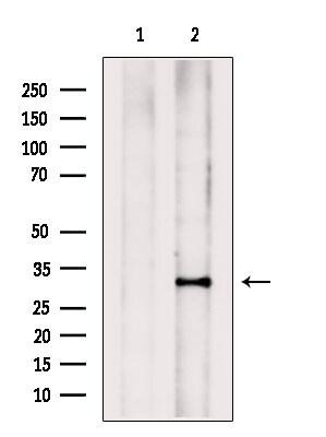 PHOX2B Antibody in Western Blot (WB)