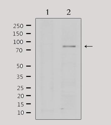 PRMT5 Antibody in Western Blot (WB)