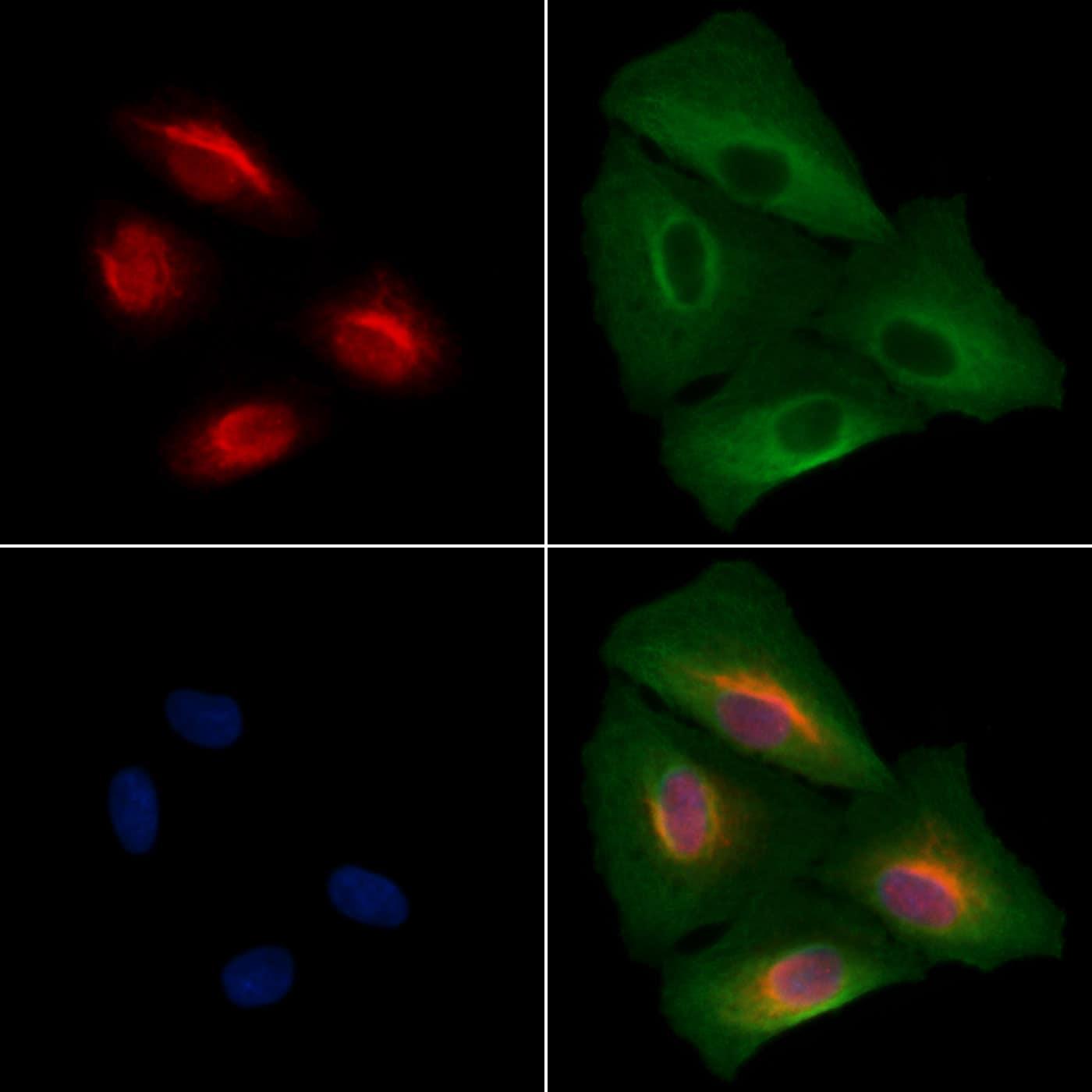 SALL1 Antibody in Immunocytochemistry (ICC/IF)