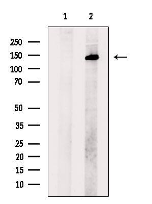 SALL1 Antibody in Western Blot (WB)