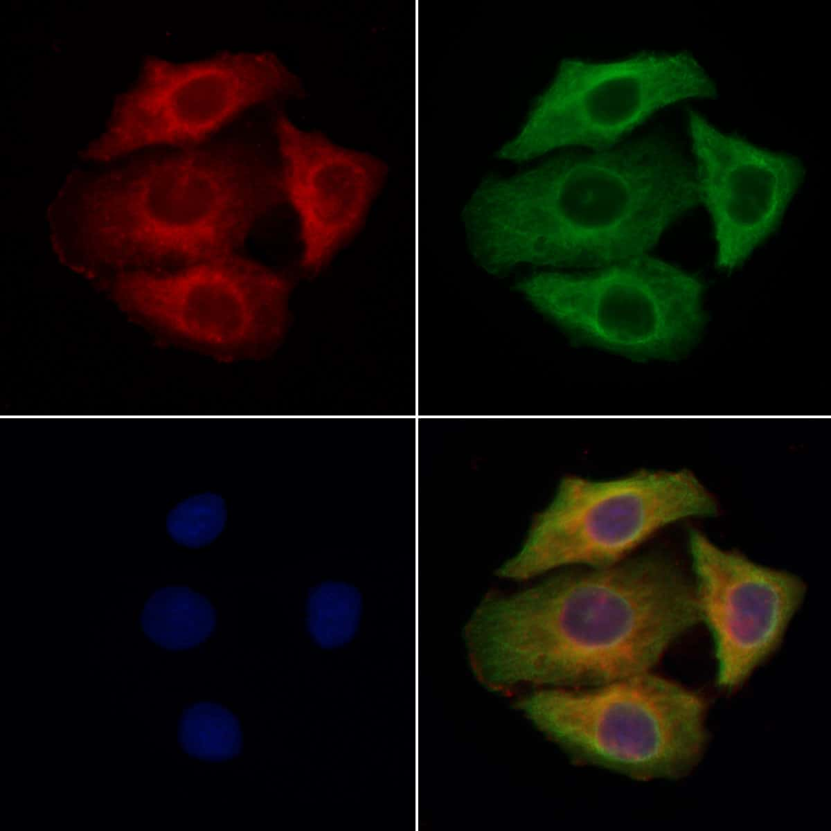 SLC26A4 Antibody in Immunocytochemistry (ICC/IF)