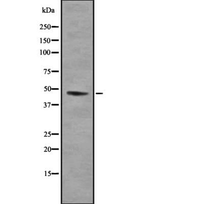 SUV39H1 Antibody in Western Blot (WB)