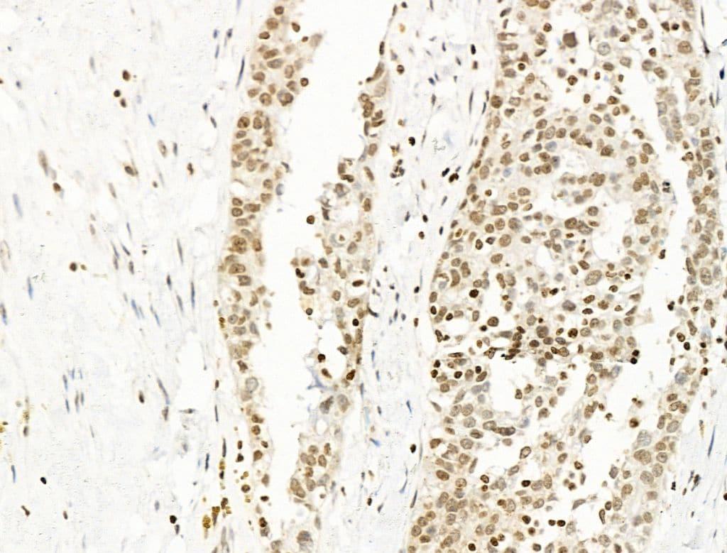 UBR4 Antibody in Immunohistochemistry (Paraffin) (IHC (P))