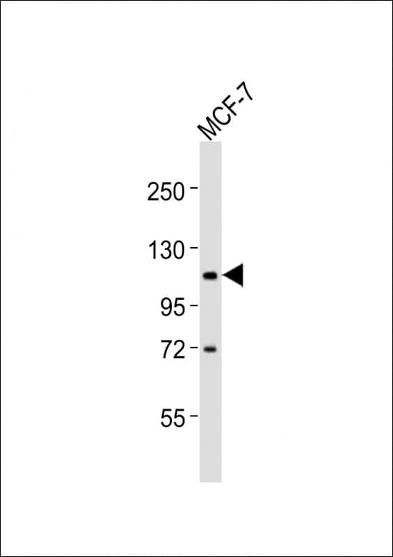 ADAMTS15 Antibody in Western Blot (WB)