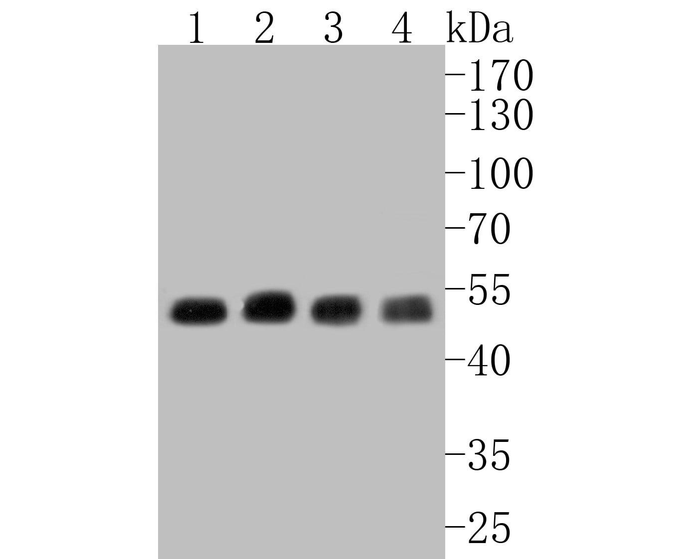 CHRNA3 Antibody in Western Blot (WB)