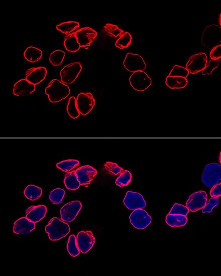 Lamin A/C Antibody in Immunocytochemistry (ICC)