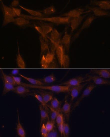 Caspase 9 Antibody in Immunocytochemistry (ICC)